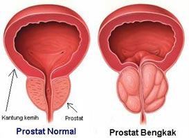 Hasil gambar untuk pembesaran kelenjar prostat